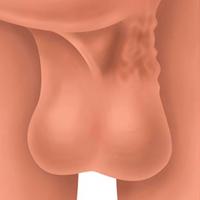 Cirugía de varicocele