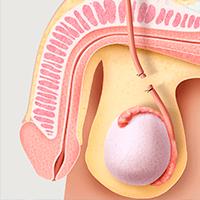 Cirugía de vasectomía